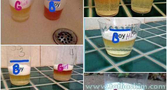 idrarla cinsiyet testi