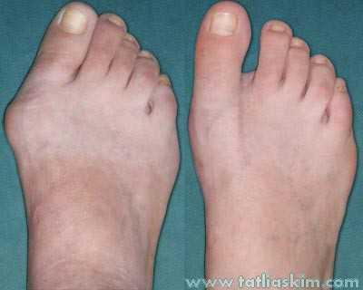 ayak kemiği çıkıntısı ameliyatı olanlar